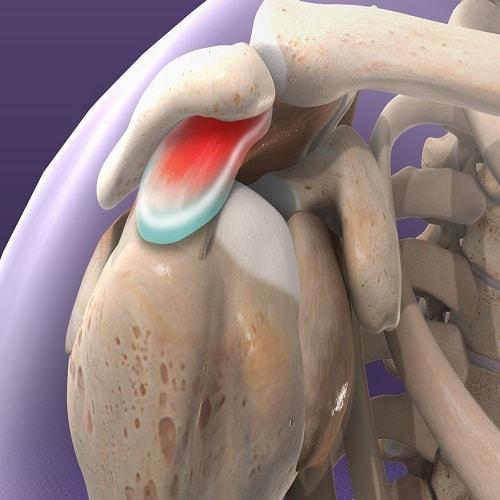 بورسیت یا التهاب کیسه زلالی